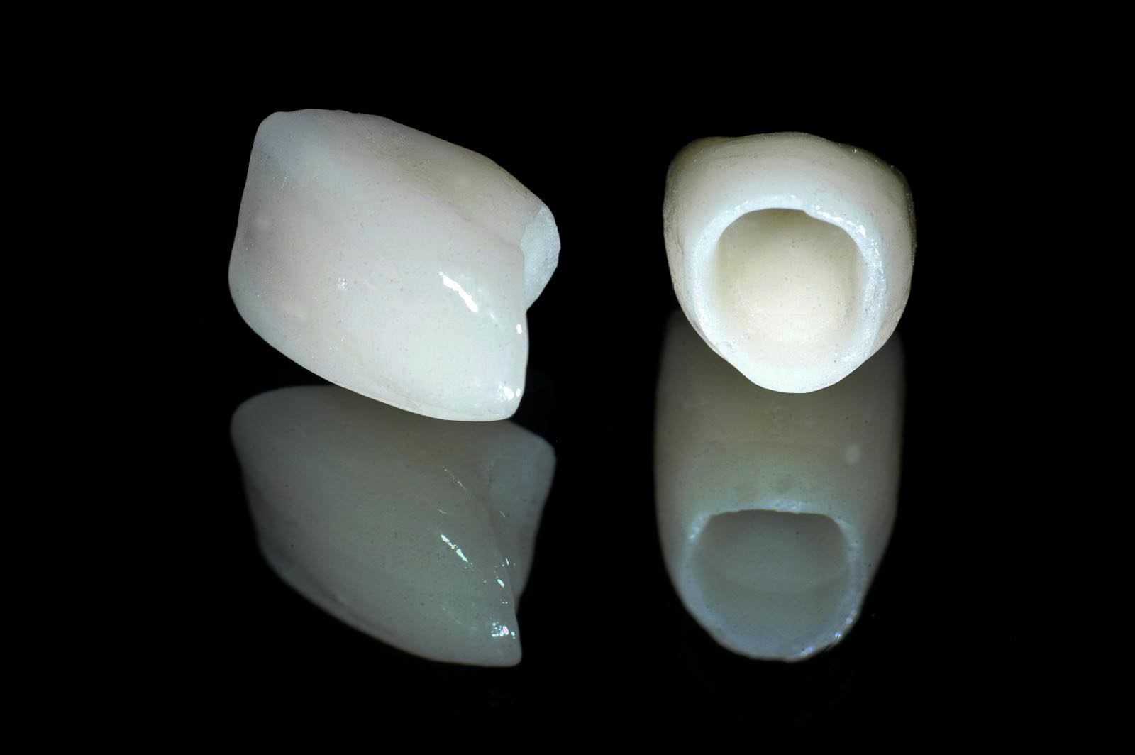 ALL CERAMIC VS PORCELAIN FUSED TO METAL CROWNS? 1