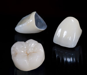 ALL CERAMIC VS PORCELAIN FUSED TO METAL CROWNS? 2