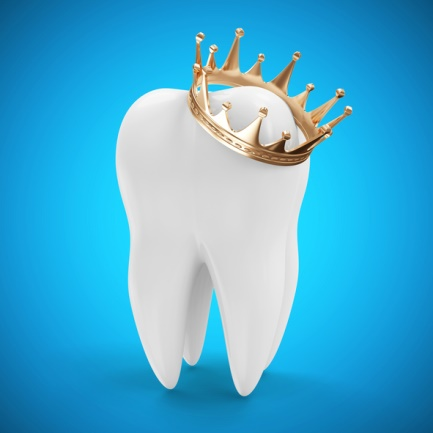 YOUR DENTAL CROWN SMILE TRANSFORMATION – WHAT CAN YOU EXPECT ? 1