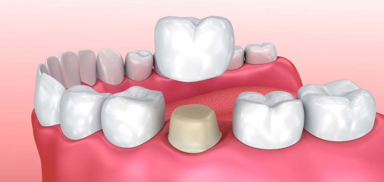 YOUR DENTAL CROWN SMILE TRANSFORMATION – WHAT CAN YOU EXPECT ? 2