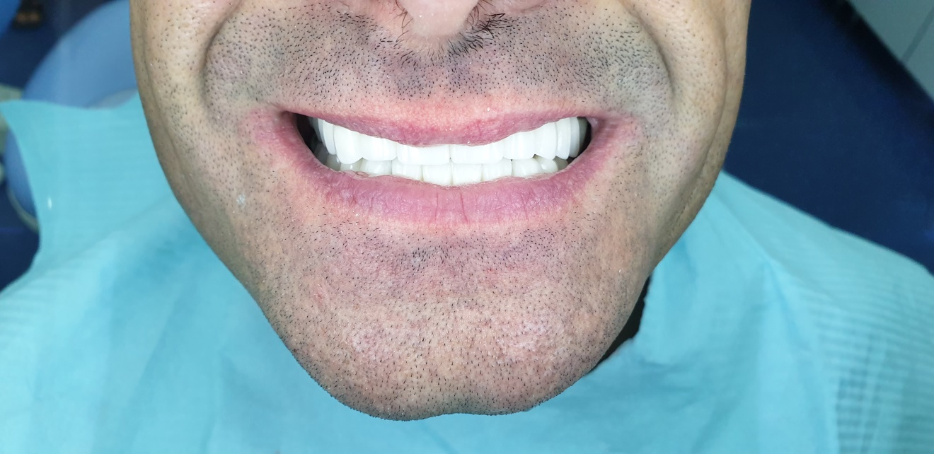 YOUR DENTAL CROWN SMILE TRANSFORMATION – WHAT CAN YOU EXPECT ? 5